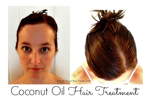 treatmentcoconutoil